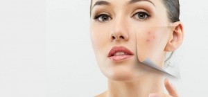 Pastillas anticonceptivas para el acné