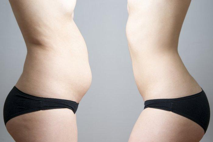 aumento de peso por anticonceptivos